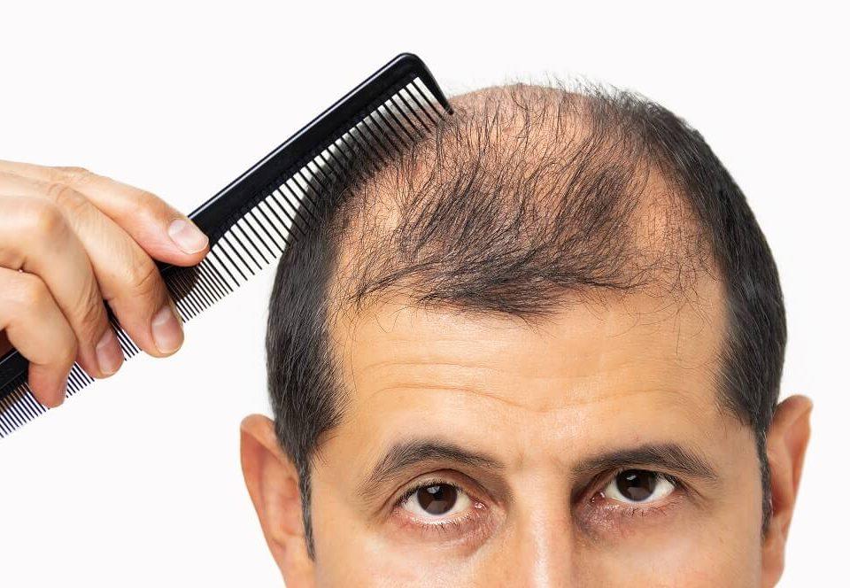 minoxidil é bom para evitar a queda de cabelo